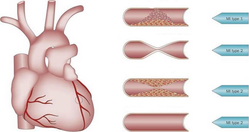 heart attack-stroke-arteriosclerosis