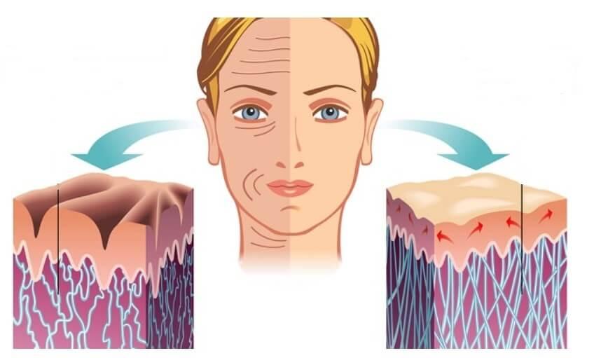 liposomal-vitamin-c-anti-aging-forming collagen