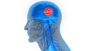 Hirnschlag durch Arterienverstopfung