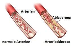 Verstopfte Arterien / Arteriosklerose