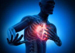 Herzinfarkt bei Arteriosklerose