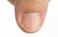 dry and brittle nails